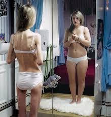 L'hypnothérapie, une solution naturelle contre l'anorexie